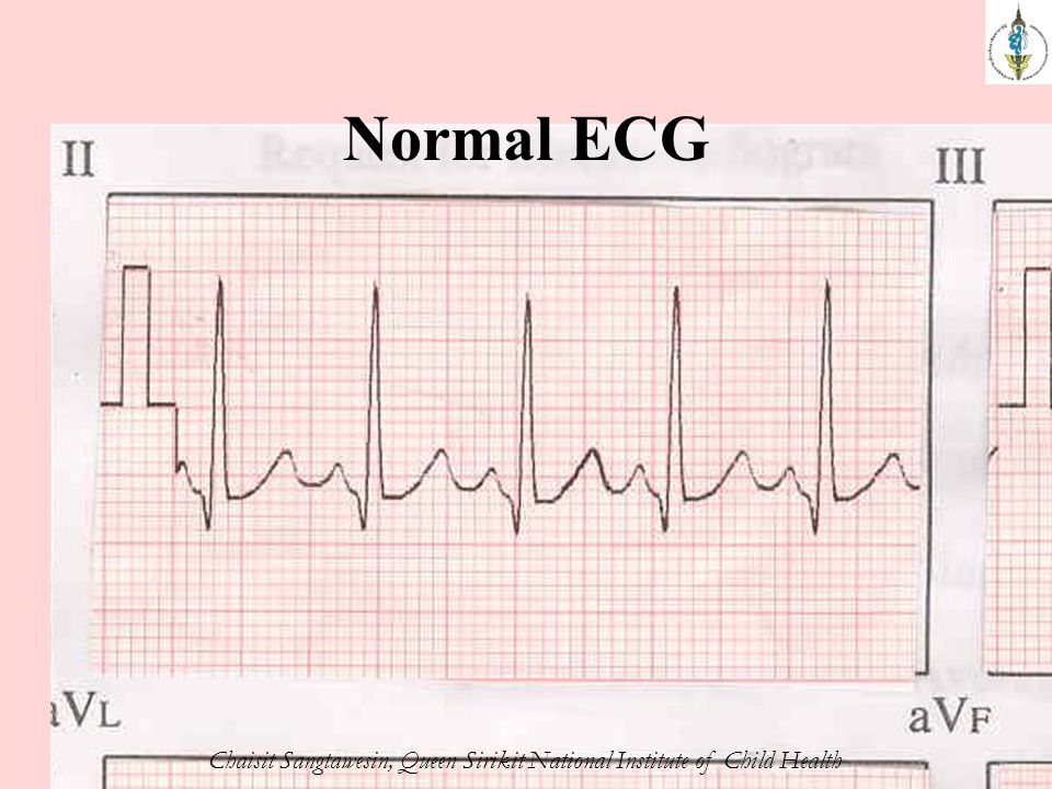 Normal ECG Chaisit Sangtawesin, Queen Sirikit National Institute of Child Health