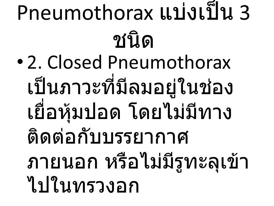 Pneumothorax แบ่งเป็น 3 ชนิด