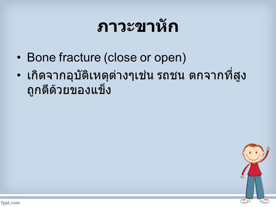 ภาวะขาหัก Bone fracture (close or open)