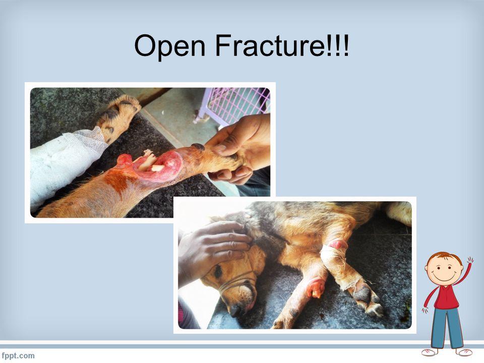 Open Fracture!!!