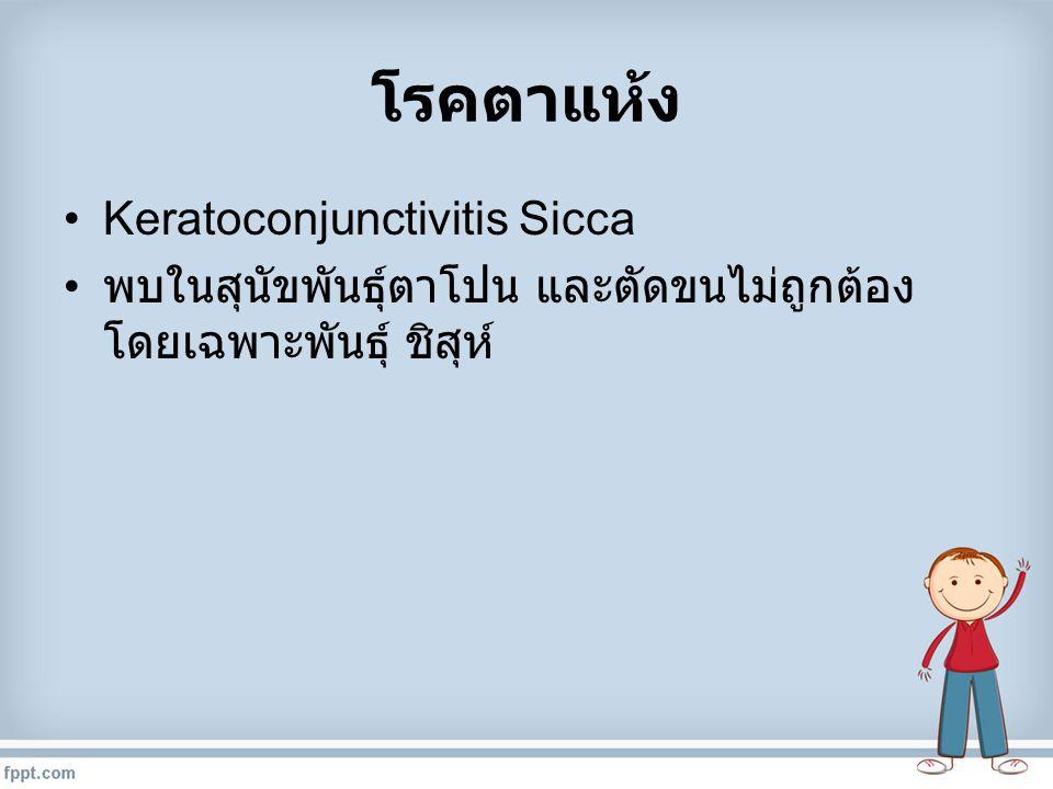 โรคตาแห้ง Keratoconjunctivitis Sicca