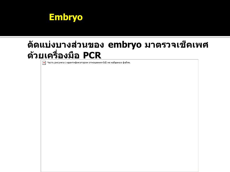 Sexing Embryo ตัดแบ่งบางส่วนของ embryo มาตรวจเช็คเพศด้วยเครื่องมือ PCR