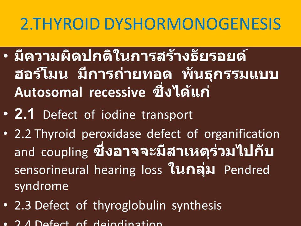 2.THYROID DYSHORMONOGENESIS