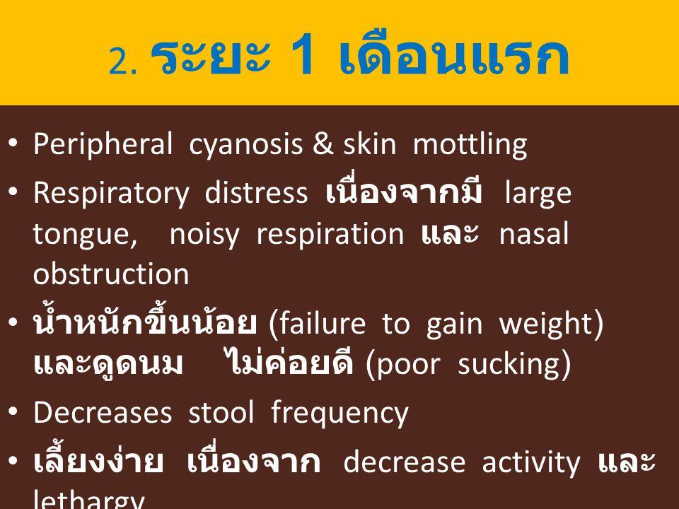 2. ระยะ 1 เดือนแรก Peripheral cyanosis & skin mottling