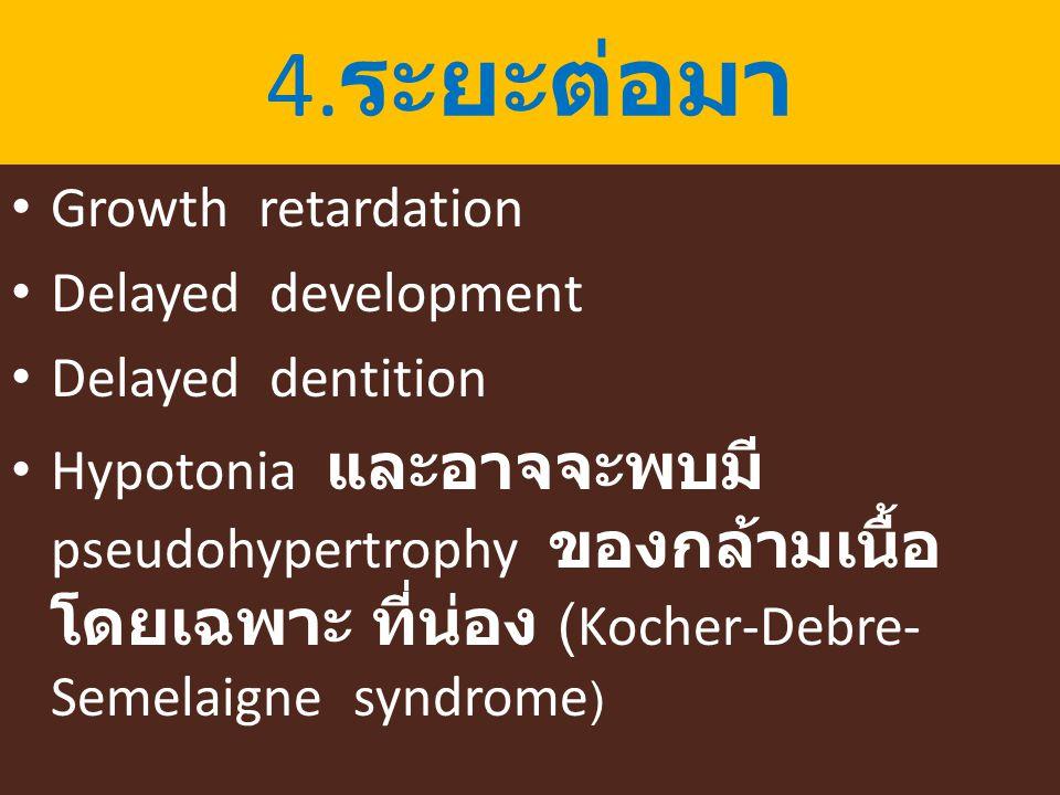 4.ระยะต่อมา Growth retardation Delayed development Delayed dentition