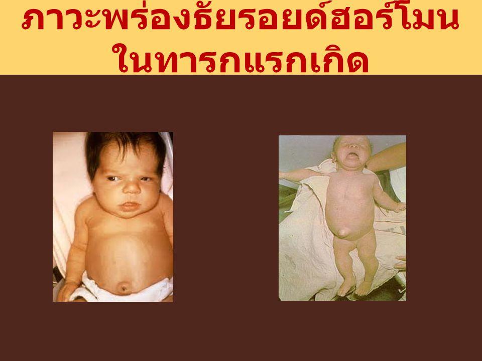 ภาวะพร่องธัยรอยด์ฮอร์โมนในทารกแรกเกิด