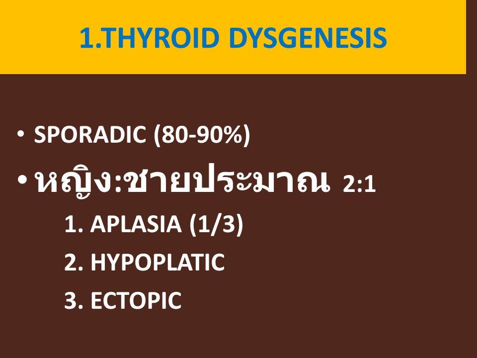 หญิง:ชายประมาณ 2:1 1.THYROID DYSGENESIS SPORADIC (80-90%)