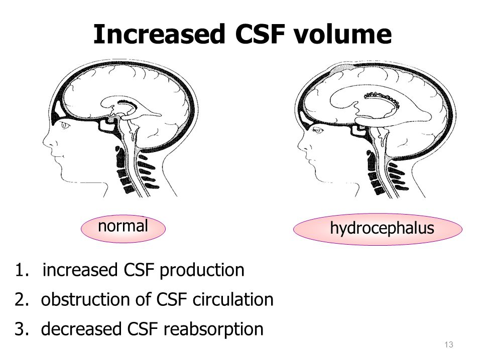 Increased CSF volume increased CSF production