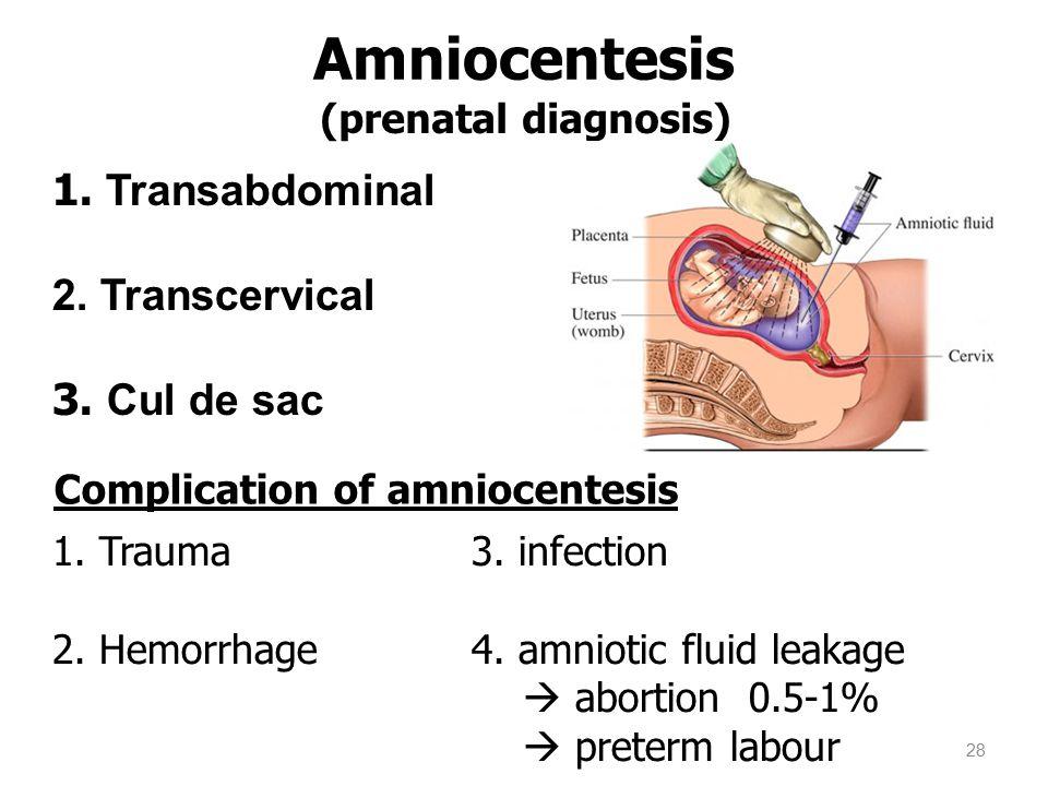 Amniocentesis 1. Transabdominal 2. Transcervical 3. Cul de sac