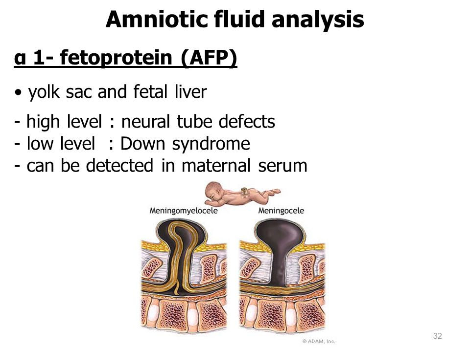 Amniotic fluid analysis