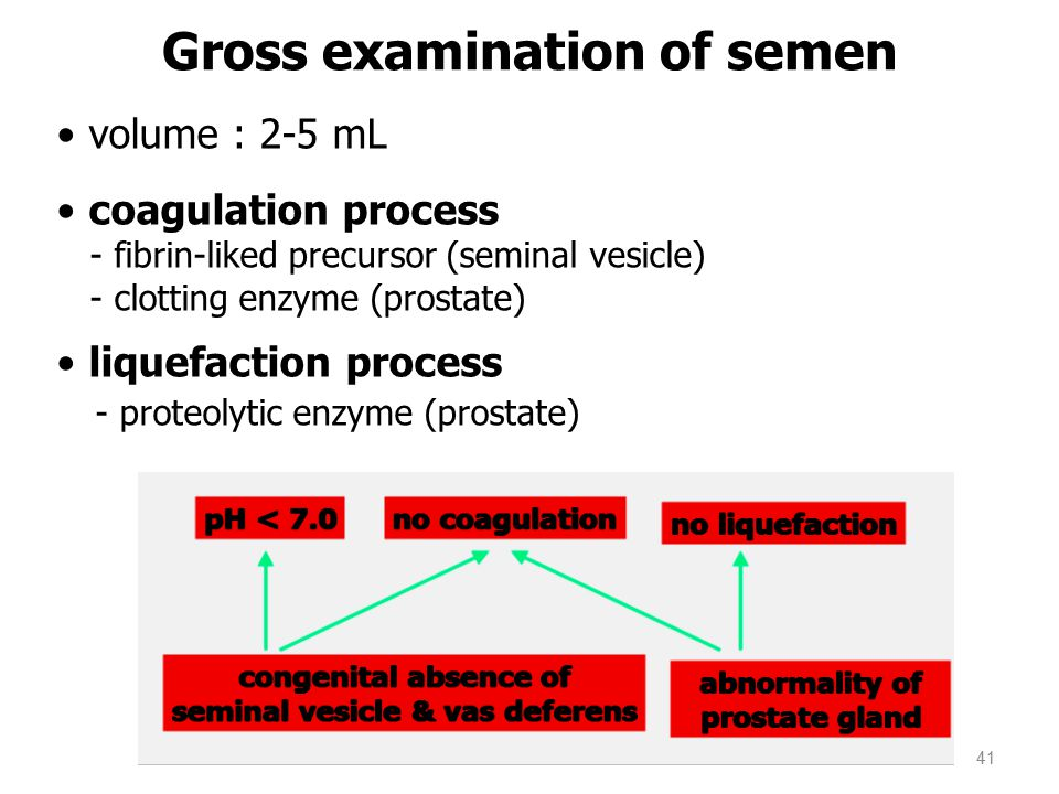 Gross examination of semen