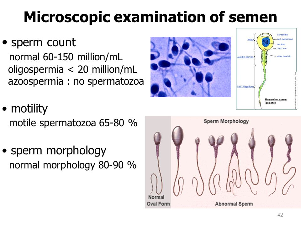 Microscopic examination of semen