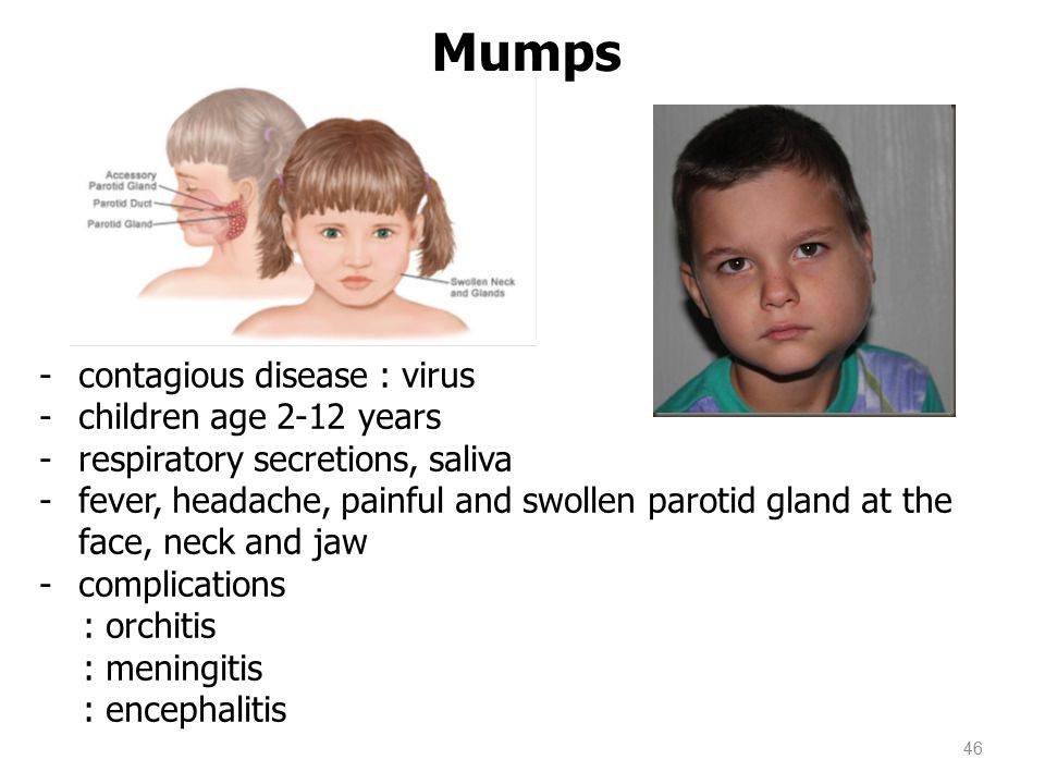Mumps contagious disease : virus children age 2-12 years
