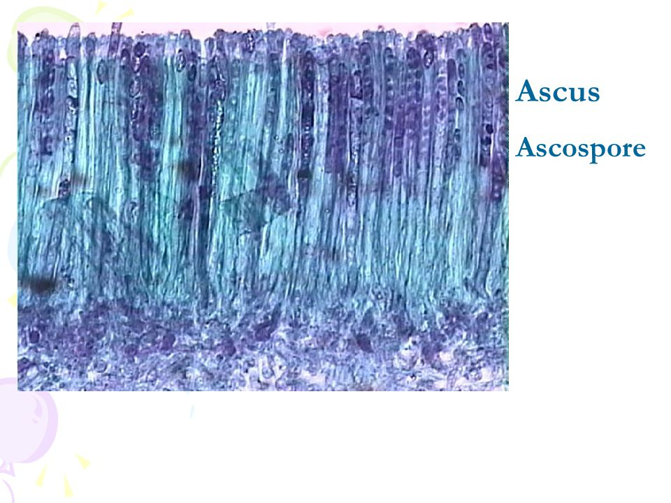 Ascus Ascospore