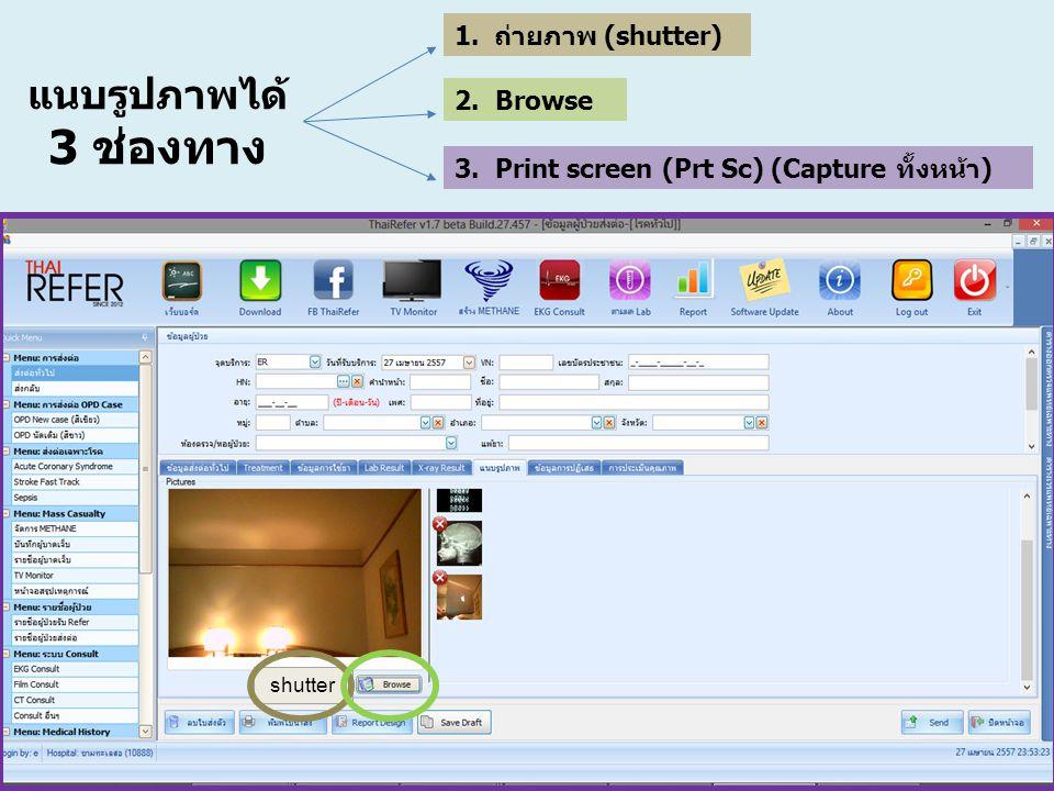 แนบรูปภาพได้ 3 ช่องทาง ถ่ายภาพ (shutter) 2. Browse