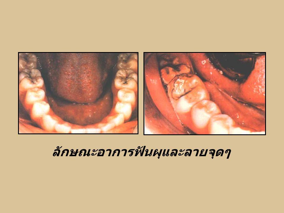 ลักษณะอาการฟันผุและลายจุดๆ