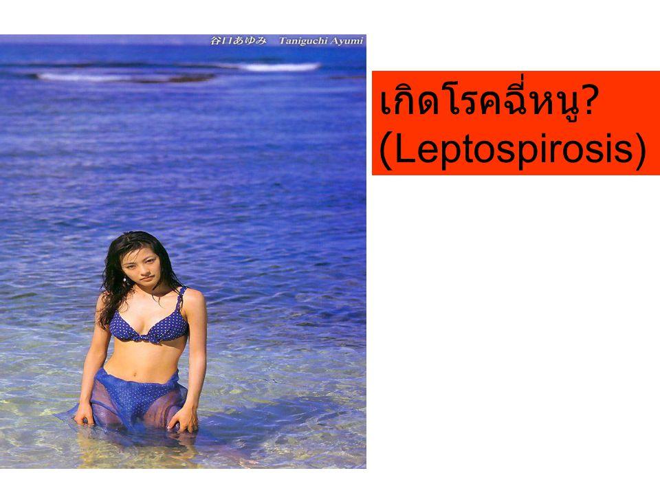 เกิดโรคฉี่หนู (Leptospirosis)