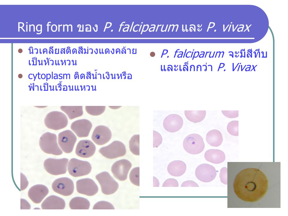 Ring form ของ P. falciparum และ P. vivax
