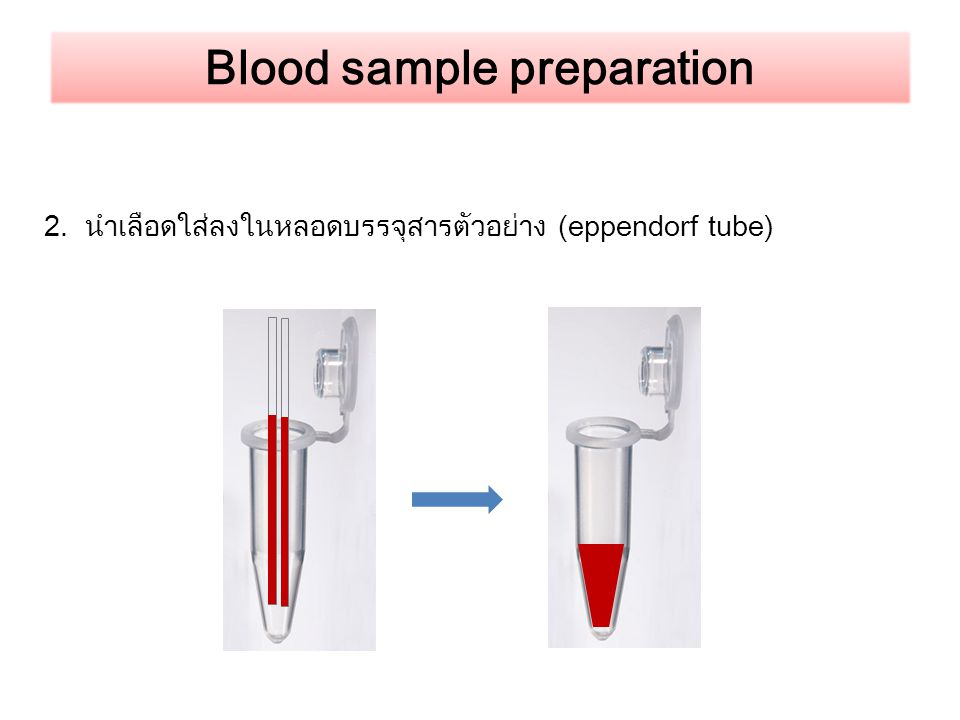 Blood sample preparation