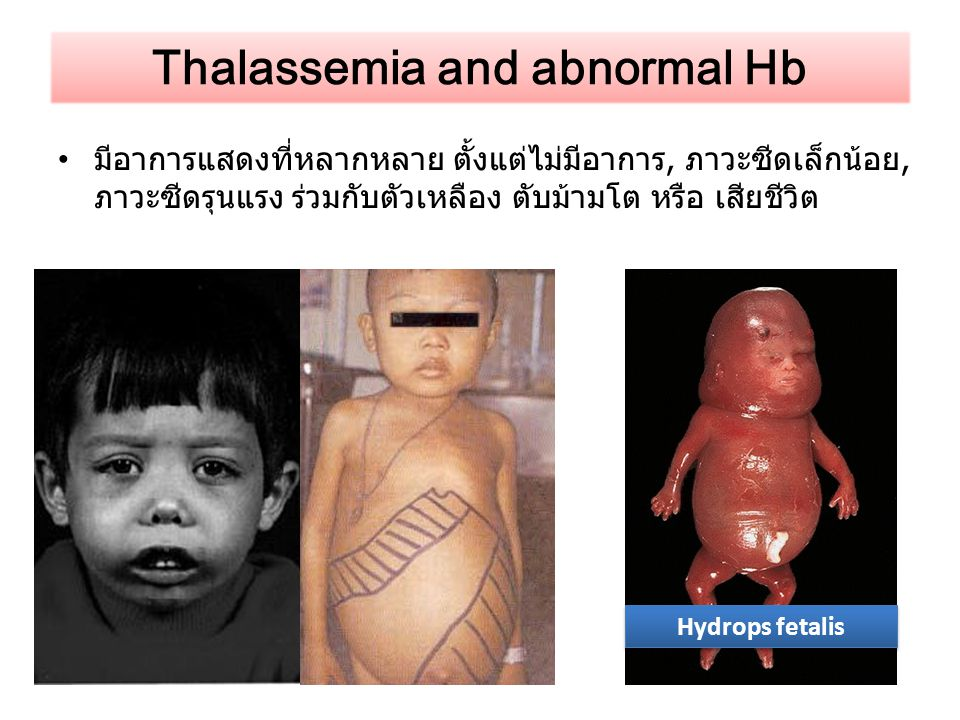 Thalassemia and abnormal Hb