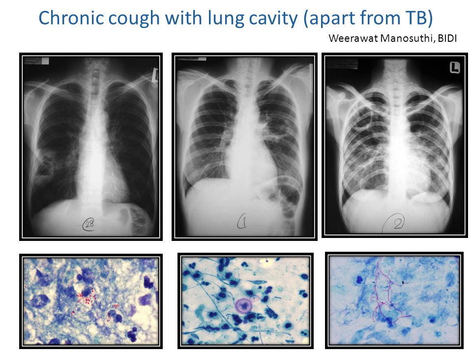 Chronic cough with lung cavity (apart from TB)