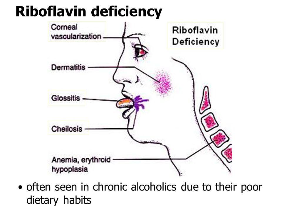 Riboflavin deficiency