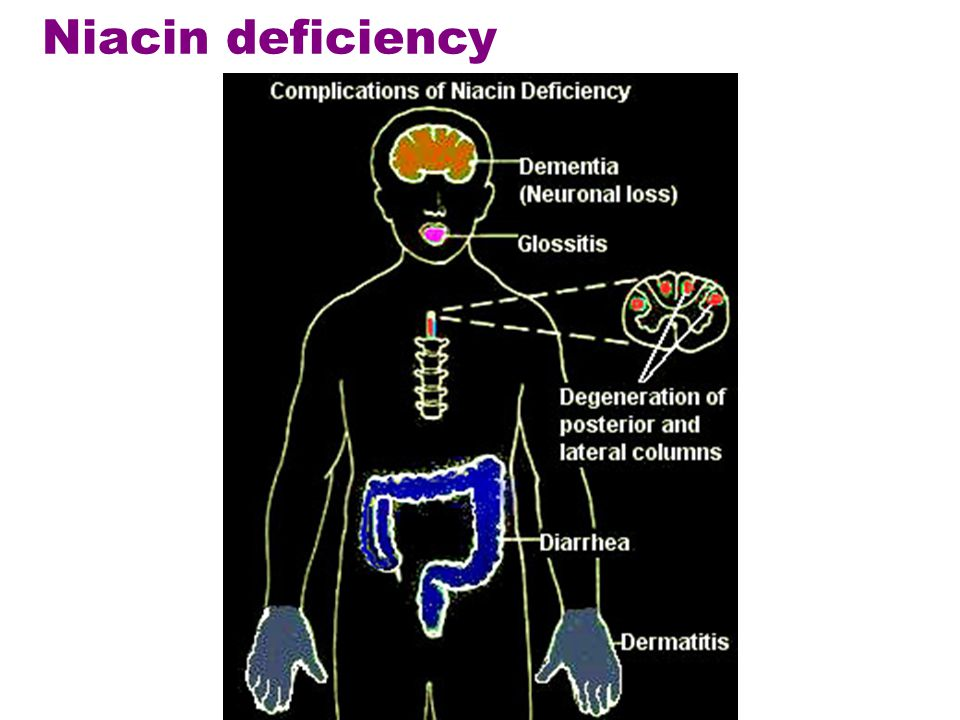 Niacin deficiency