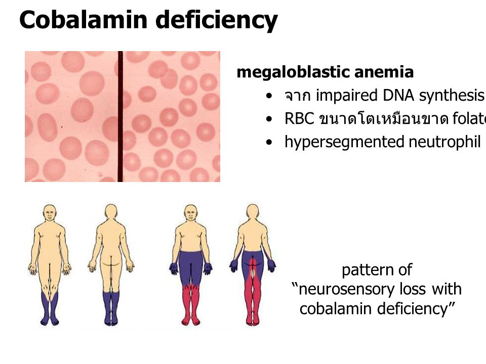 pattern of neurosensory loss with cobalamin deficiency
