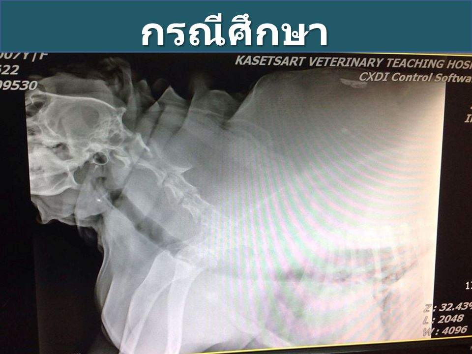 กรณีศึกษา Xray examination Increase density at perihilar area
