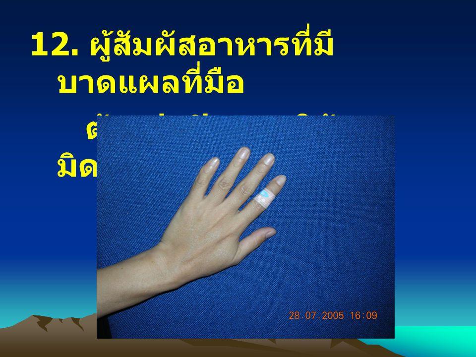 12. ผู้สัมผัสอาหารที่มีบาดแผลที่มือ
