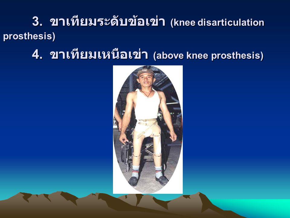 3. ขาเทียมระดับข้อเข่า (knee disarticulation prosthesis). 4