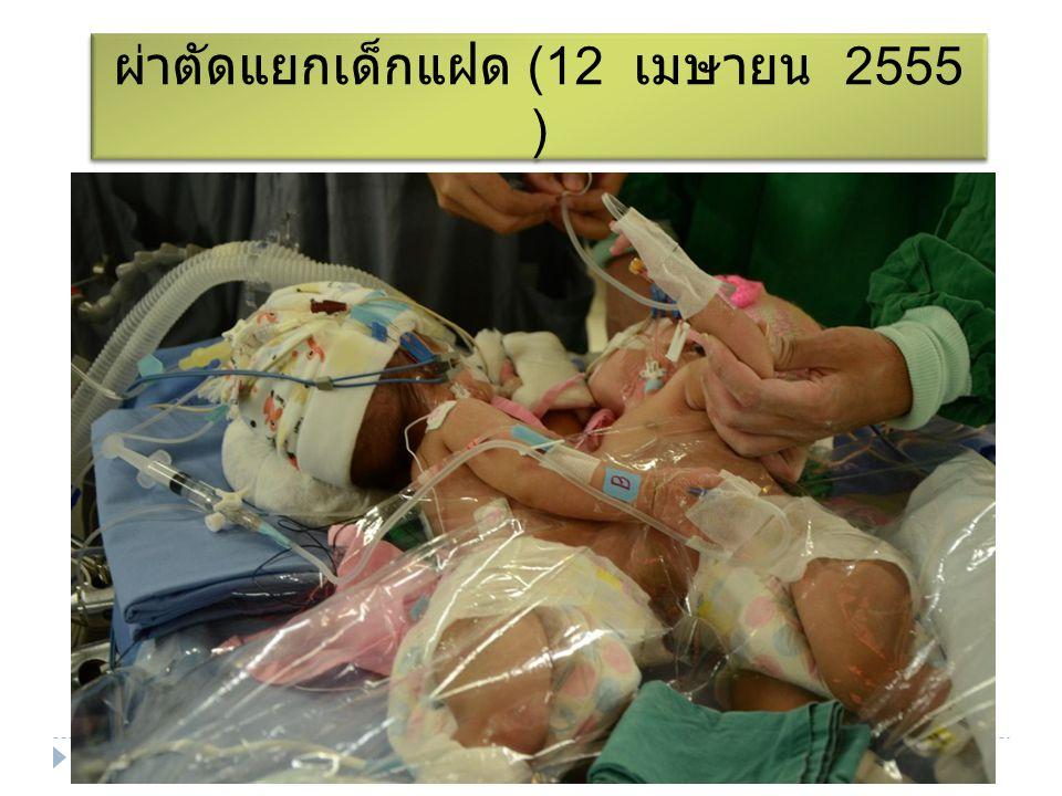 ผ่าตัดแยกเด็กแฝด (12 เมษายน 2555 )