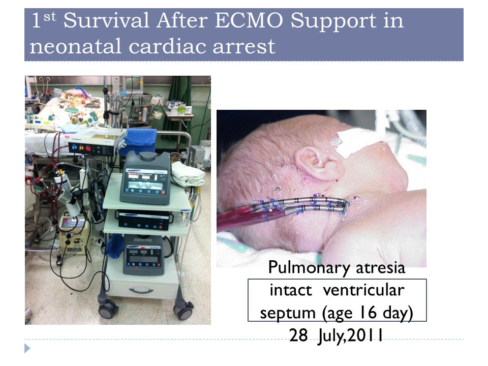 1st Survival After ECMO Support in neonatal cardiac arrest