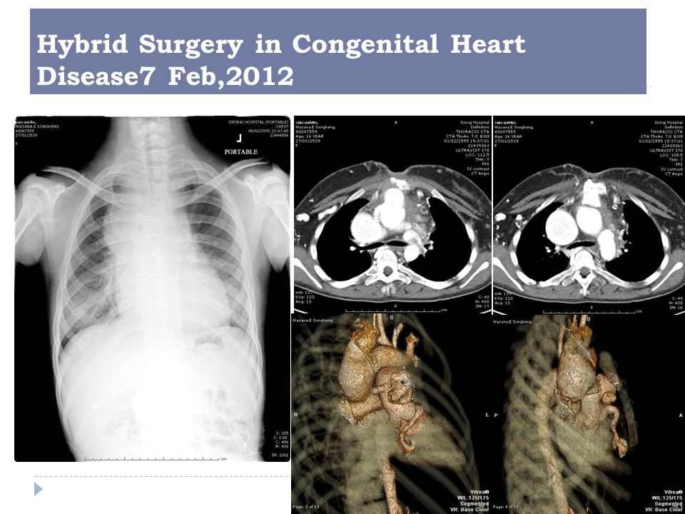 Hybrid Surgery in Congenital Heart Disease7 Feb,2012