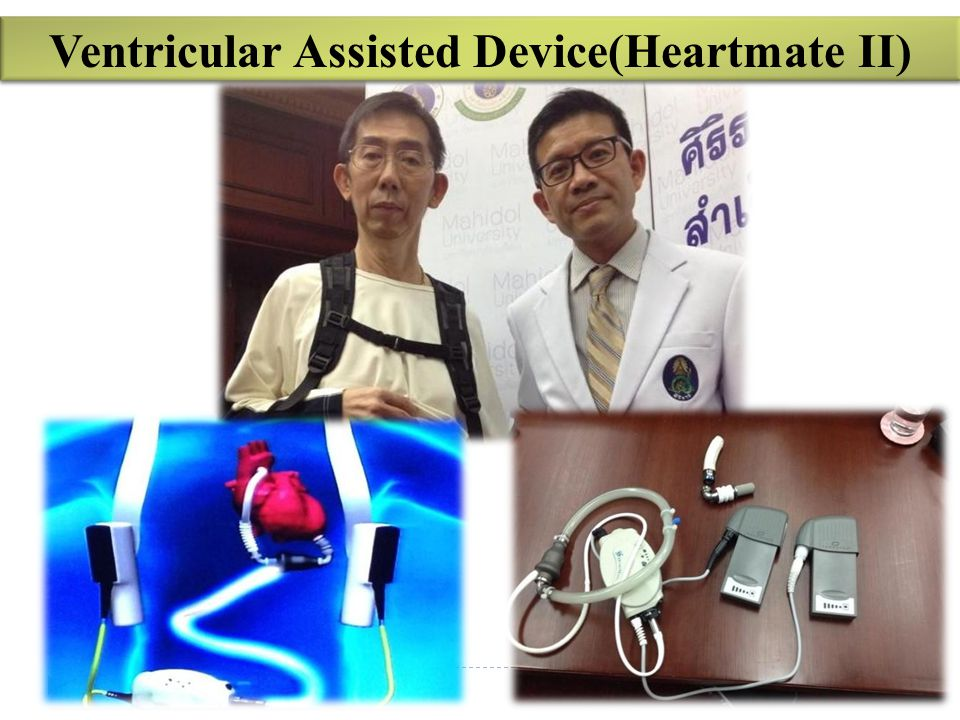 Ventricular Assisted Device(Heartmate II)