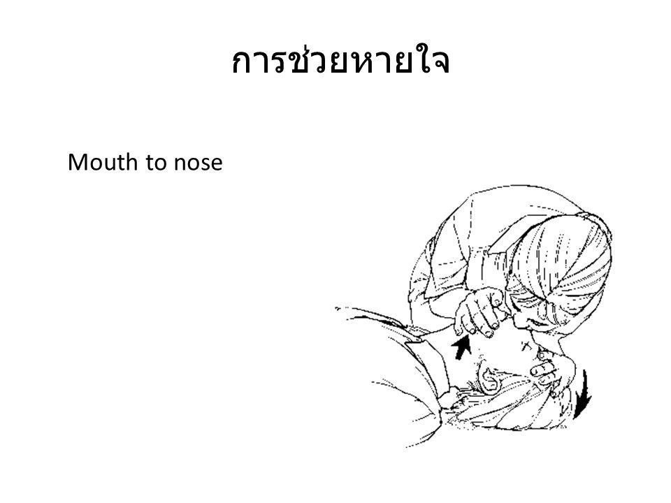 การช่วยหายใจ Mouth to nose