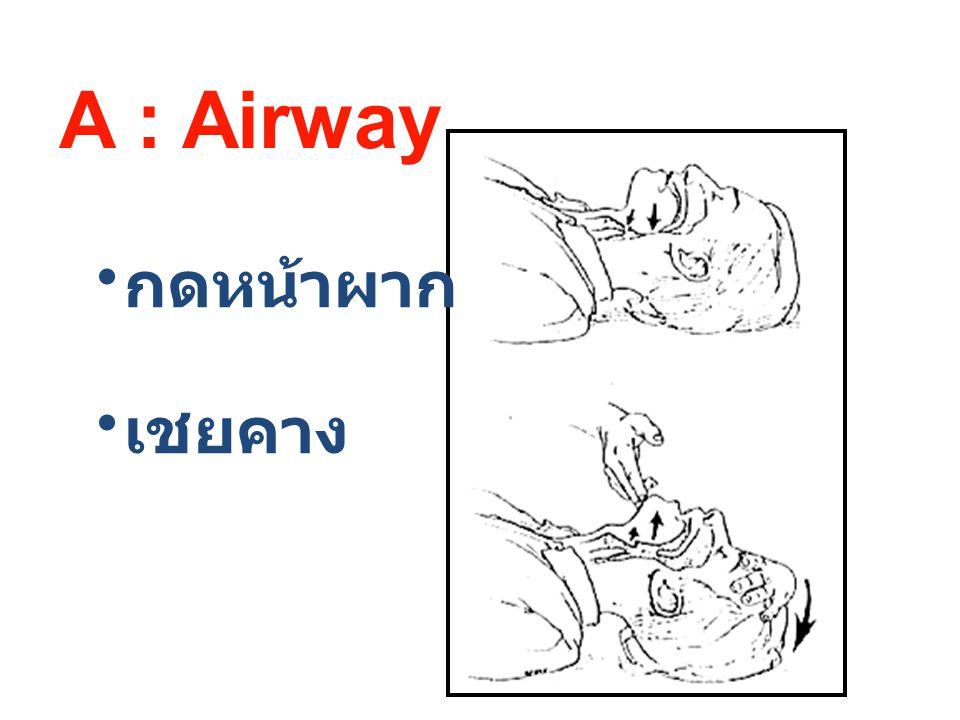 A : Airway กดหน้าผาก เชยคาง