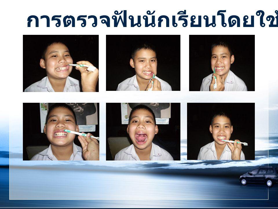 การตรวจฟันนักเรียนโดยใช้ด้ามแปรงสีฟัน