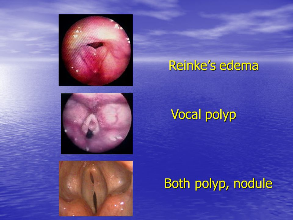 Reinke's edema Vocal polyp Both polyp, nodule