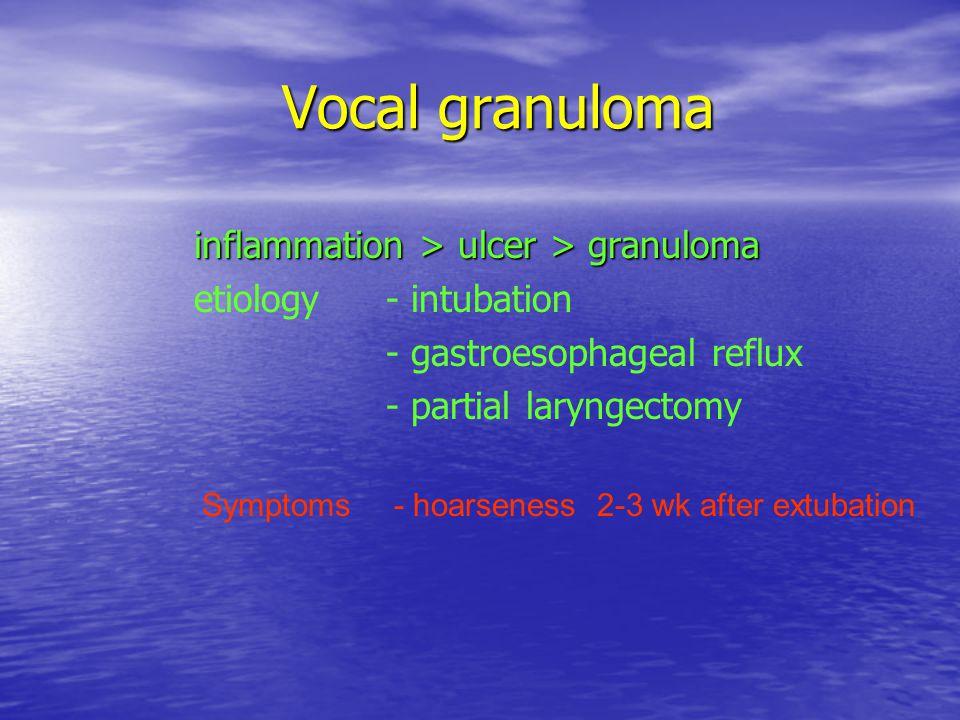 Vocal granuloma inflammation > ulcer > granuloma
