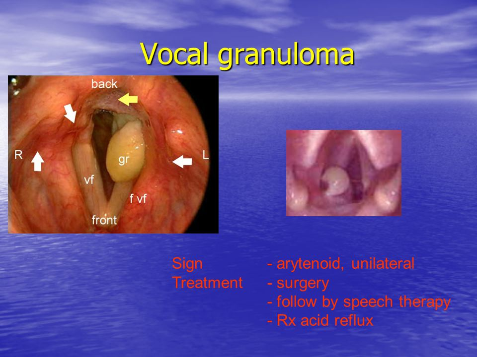 Vocal granuloma Sign - arytenoid, unilateral Treatment - surgery