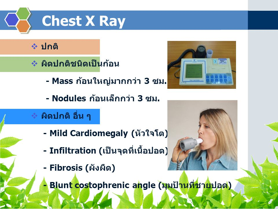 Chest X Ray ปกติ ผิดปกติชนิดเป็นก้อน - Mass ก้อนใหญ่มากกว่า 3 ซม.