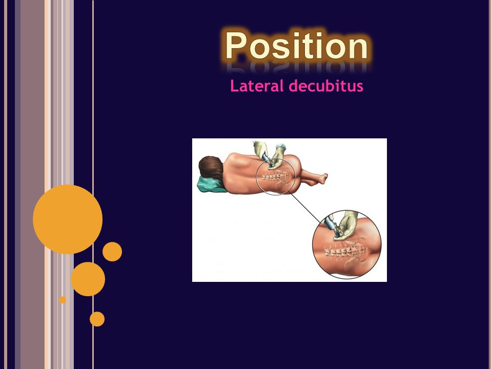Position Lateral decubitus