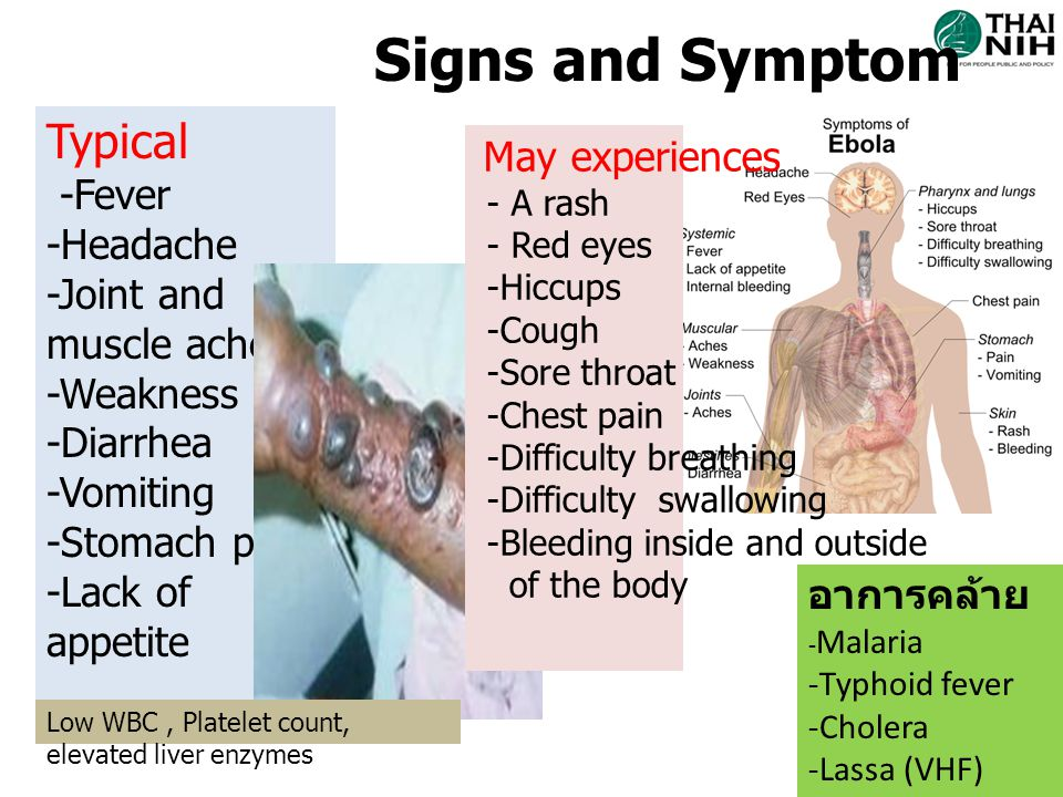 Signs and Symptom Typical -Fever -Headache -Joint and muscle aches