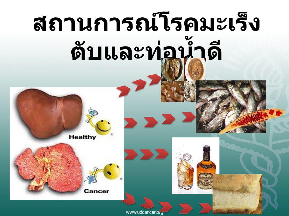 สถานการณ์โรคมะเร็งตับและท่อน้ำดี