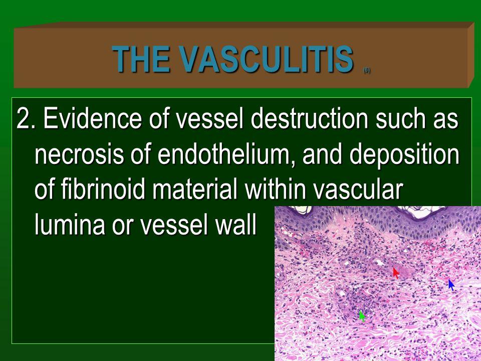 THE VASCULITIS (6)
