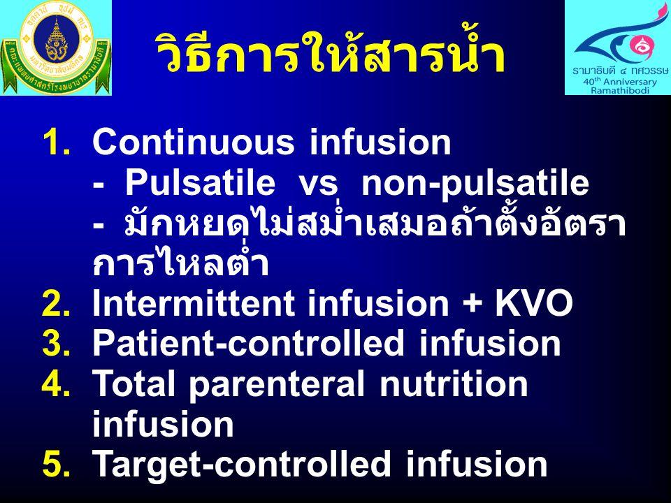 วิธีการให้สารน้ำ Continuous infusion - Pulsatile vs non-pulsatile