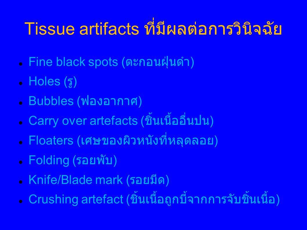 Tissue artifacts ที่มีผลต่อการวินิจฉัย