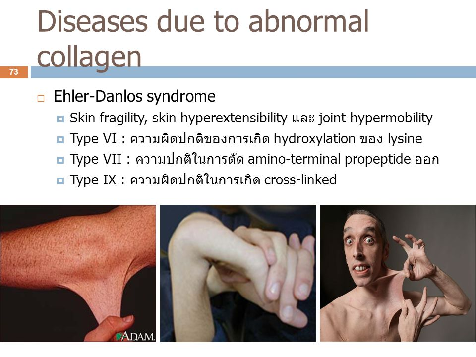 Diseases due to abnormal collagen