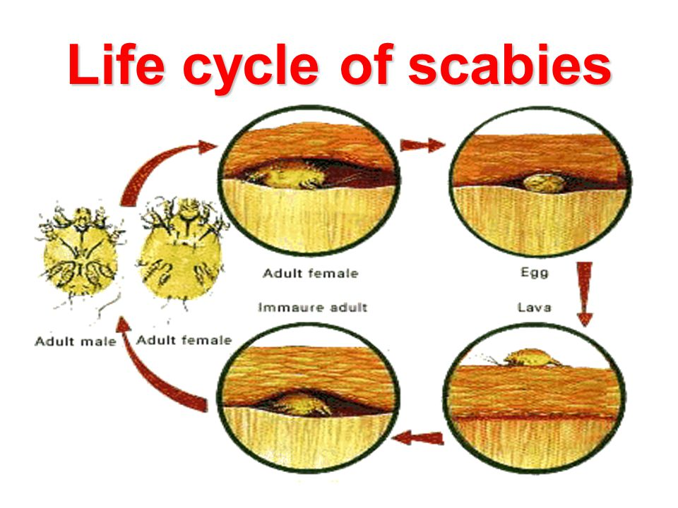 Life cycle of scabies 28